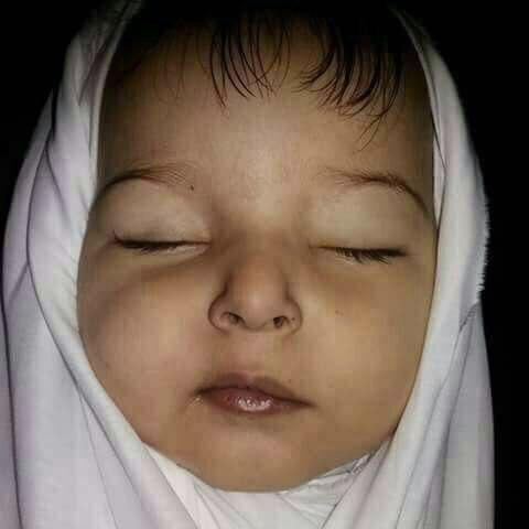 الطفلة البالغة من العمر عام ونصف، توفيا بعد معانتهما مع المرض، جراء ندرة الأدوية في الغوطة الشرقية