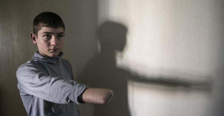 طفل سوري يأمل بالحصول على يد اصطناعية